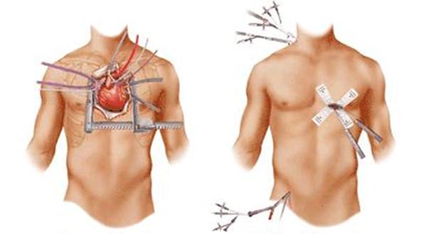 prof. dr. yavuz beşoğul minimal invaiz kapalı kalp cerrahisi