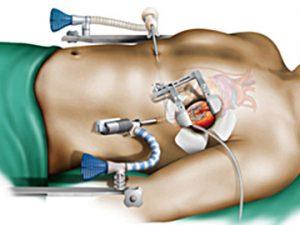 Koltuk Altı Kalp Ameliyatı Güvenli Midir?