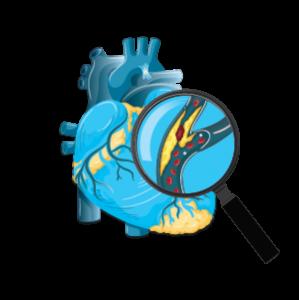 kalp damar hastalıkları
