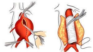 Aort Anevrizması Tedavi Yöntemleri
