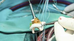 kalp kapakçığı ameliyatı