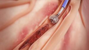 bacak damar tıkanıklığı tedavisi ameliyatı