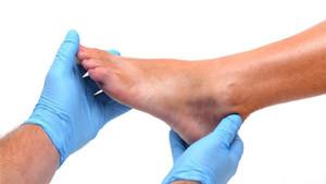 ayak morarması