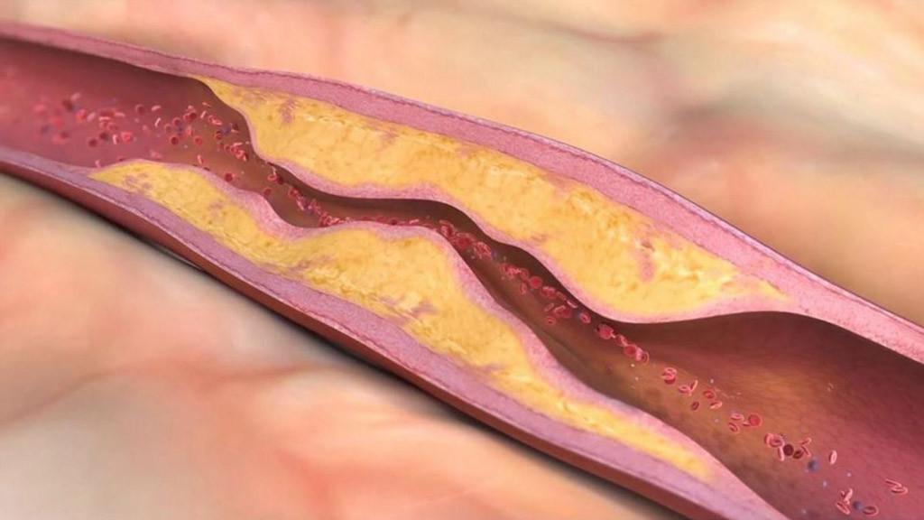 damar tıkanıklığı nedenleri nelerdir