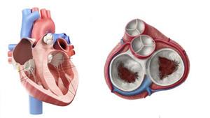 Kalp kapağında darlık