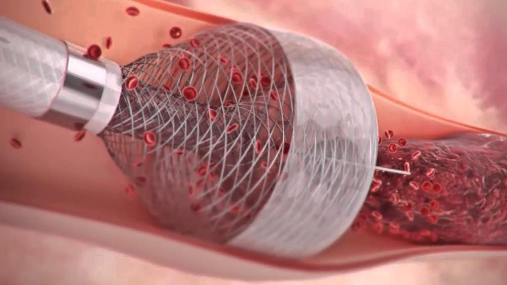 Karotis Arter Hastalığı, Belirtileri ve Tedavi Yöntemleri