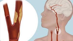 Karotis Arter Hastalığının Tanısı