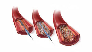 koroner arter hastalığı tedavisi