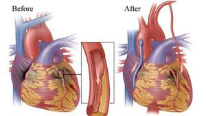 koroner bypass ameliyatı nedir ve nasıl yapılır