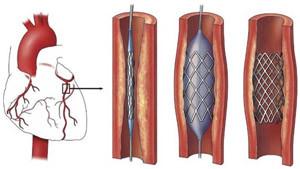 koroner bypass ameliyatında ne yapılır