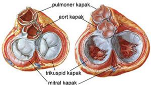 pulmoner kapak değişimi