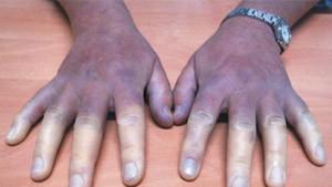 raynaud hastalığı belirtileri