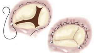 trisküspit kapak hastalıkları tedavis
