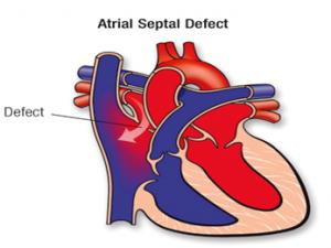 ASD (Atriyal Septal Defekt) Nedir?